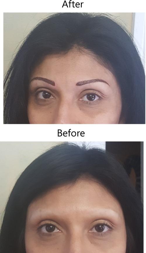 Alopecia Services